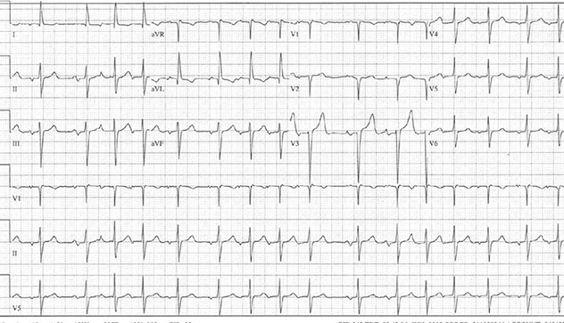 Diagram shows ECH diagnostic criteria of multifocal atrial tachycardia along with P wave.