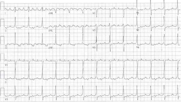Diagram shows ECH diagnostic criteria of atrial tachycardia with 3:1 conduction.