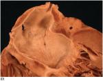 Chapter 14 – Heart Transplantation