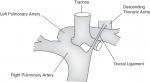Chapter 22 – Vascular Rings