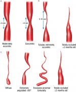 Complication of Endovascular Treatment of Intracranial Stenosis
