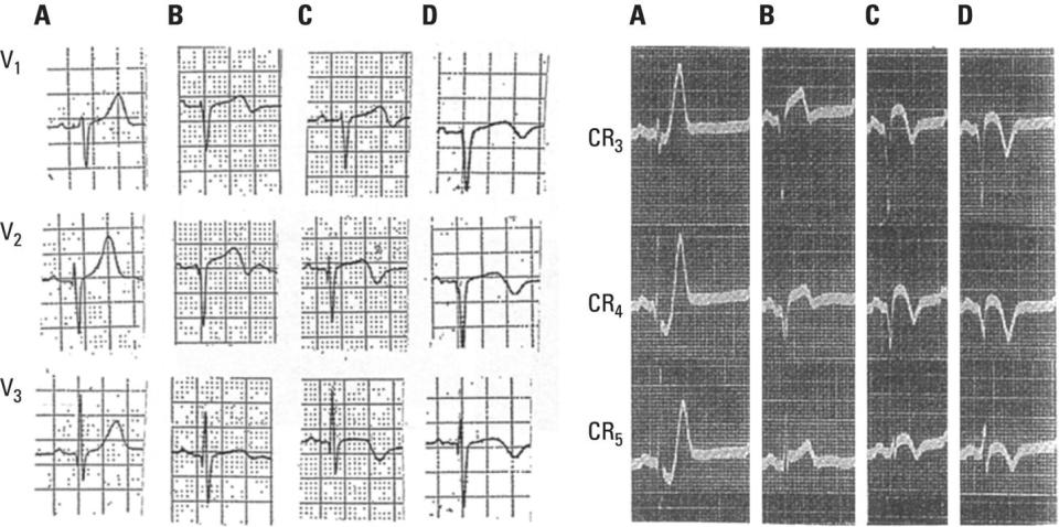 Schematic illustration of Left: Patient with acute chest pain and evolving anterior wall myocardial infarction. Right: Patient with acute chest pain.