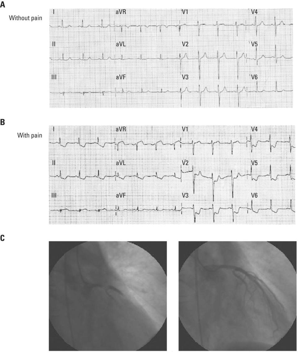 Schematic illustration of (A) ECG without pain is practically normal. (B) ECG during pain shows ST segment depression and inverted T waves in more than eight leads, maximally in leads V4–V5 where there is no positive T wave and ST segment elevation gtgtgt1 mm in lead aVR. (C) Coronary angiography shows tight stenosis in the left main coronary artery before and after primary percutaneous coronary intervention (PCI).