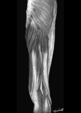 rhabdomyolyse muscles membre inferieur