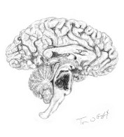 AVC accident vasculaire cerebral hemorragique tronc