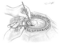 craniectomie decompressive