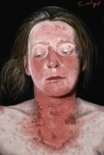 lupus LEAD