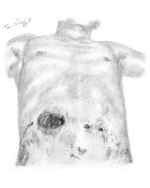 plaie par balle abdomen