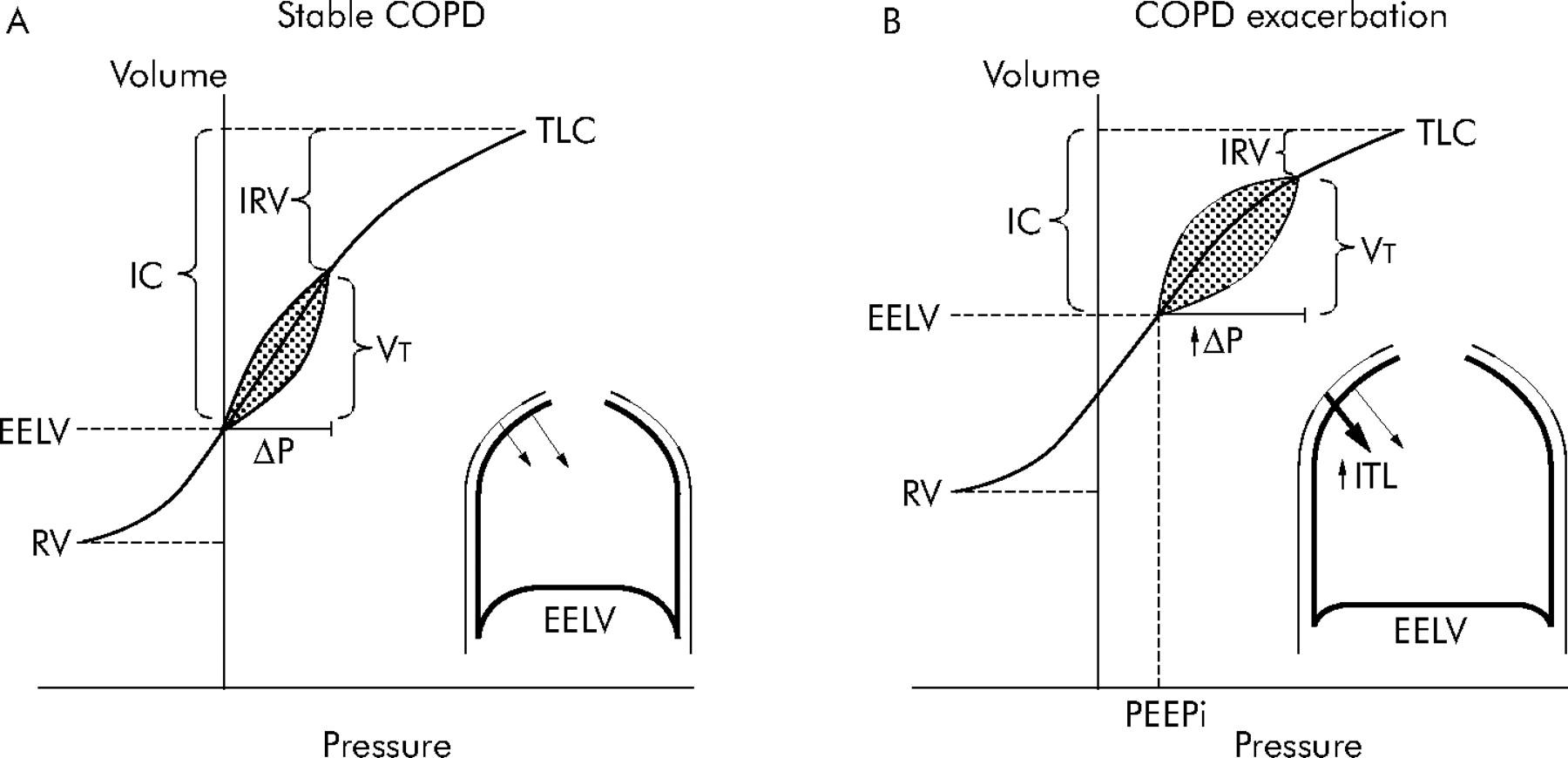 Copd Exacerbations 3 Pathophysiology