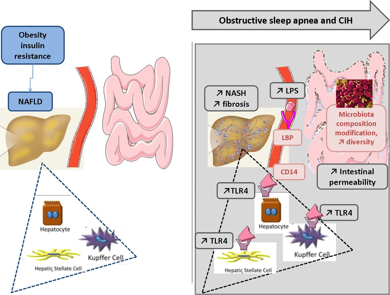New insights in the pathophysiology of chronic