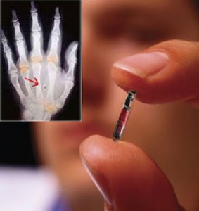 chip-rfid-implantes