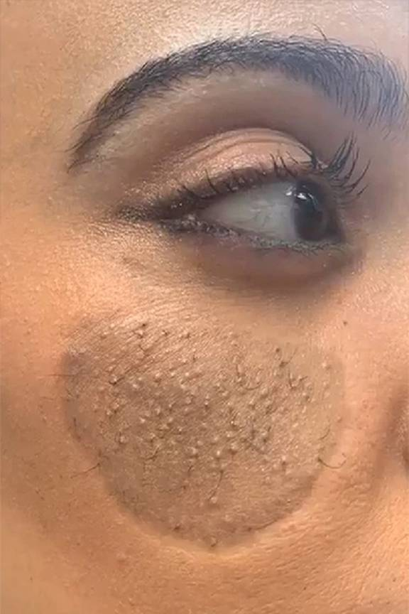 woman says her face grows pubic hair after skin graft