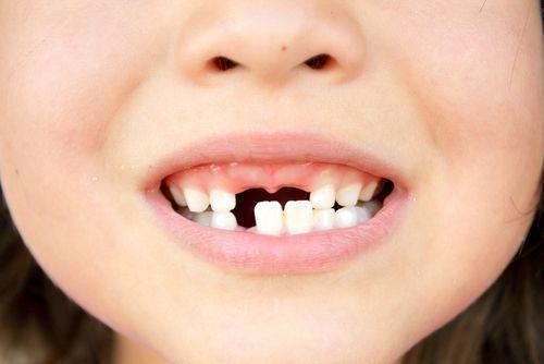 doctors urge parents to keep their kids' baby teeth