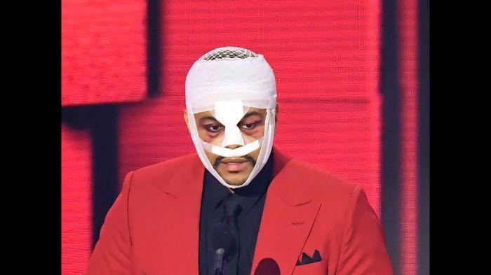 weeknd's plastic surgery look leaves fans horrified