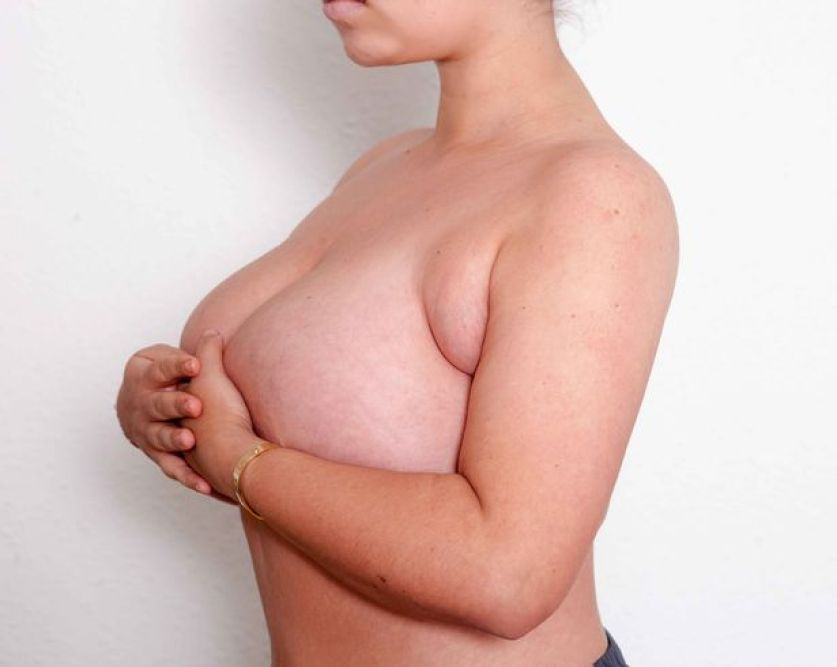 woman, 22, with 'four breasts' finally has surgery after nhs kept refusing operation