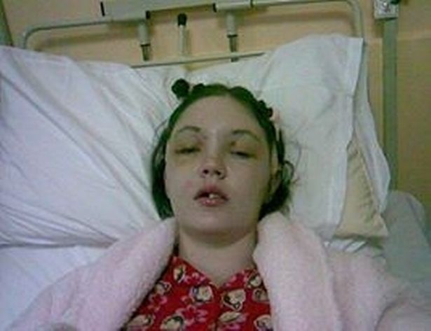 woman lost forehead when her knees slammed into her face in car crash