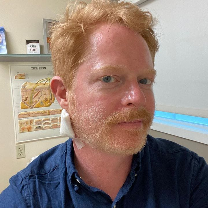 jesse tyler ferguson urges fans to go to the doctor after spotting skin cancer