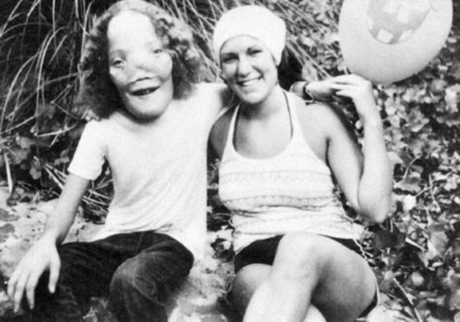 Rocky Dennis The Deformed Child That Looked Like Lion And Inspired The Film 'mask'.