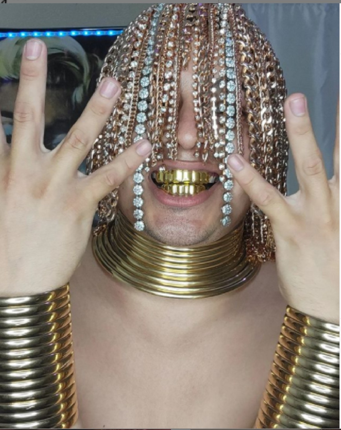 Rapper Got Gold Chains Surgically Implanted Into Head As 'hair'