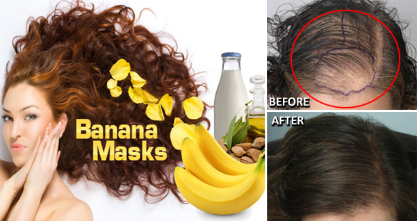 how-stop-hair-fall-with-banana-mask-home-remedy