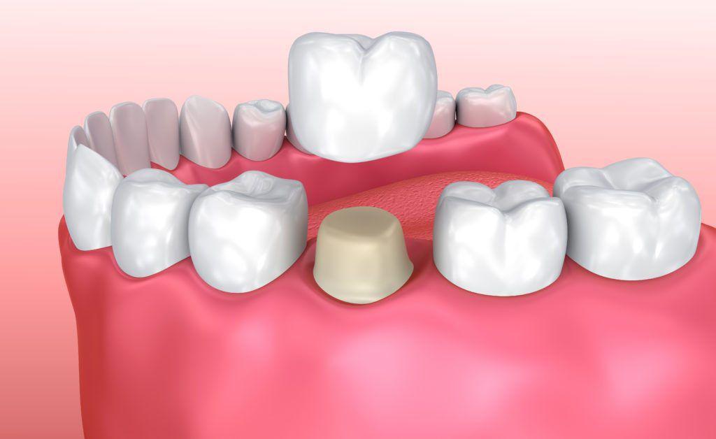 dental crown murfreesboro tn
