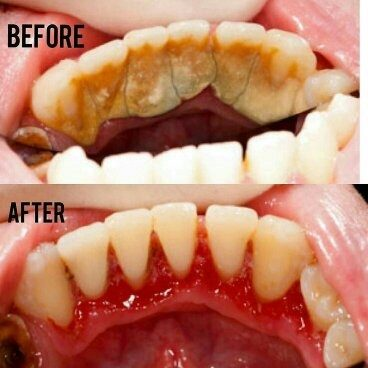 dental scaling before and after murfreesboro tn