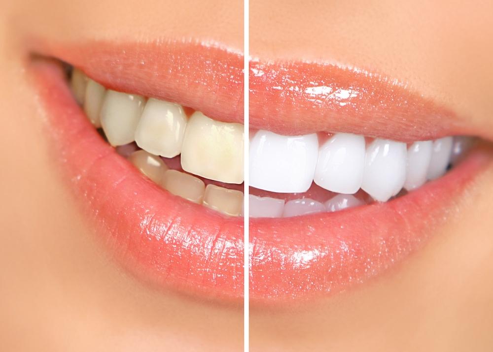 teeth whitening murfreesboro tn