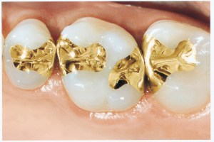gold cast fillings