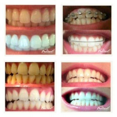 SmileBrilliant Custom Fitted Tray Kit Plus 3 Whitening Gels Giveaway ends 9/23