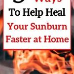 heal sunburn faster