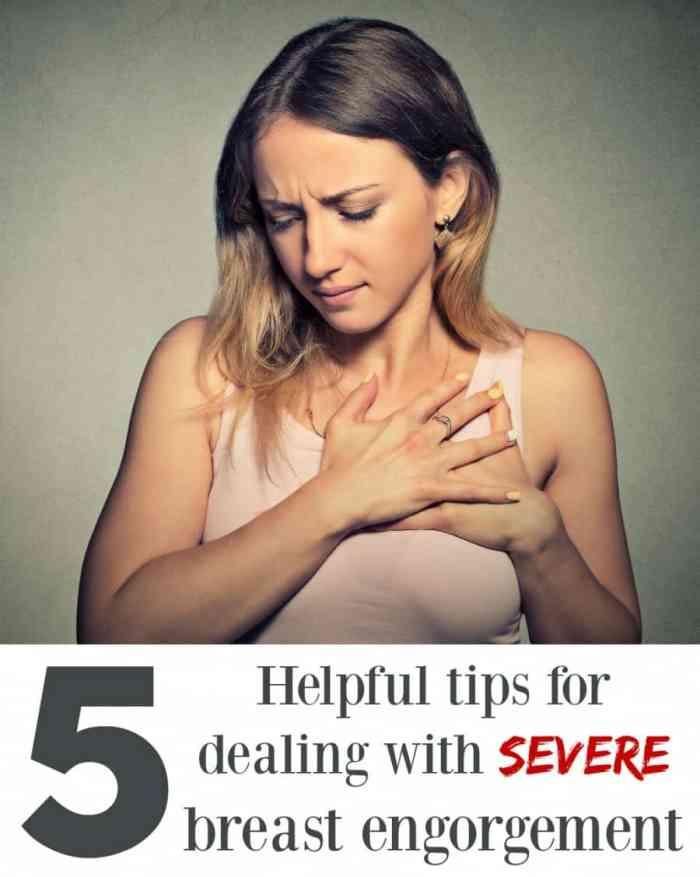 breast engorgement tips