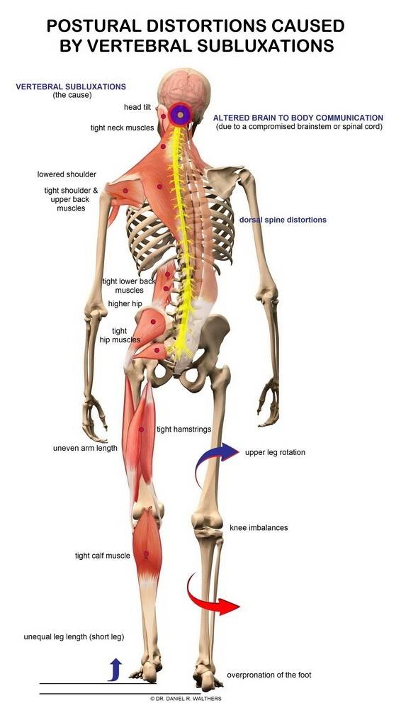 Lower Back Muscles Diagram Pain : lower, muscles, diagram, Lower, Relief, Antonio, Thrive, Spinal