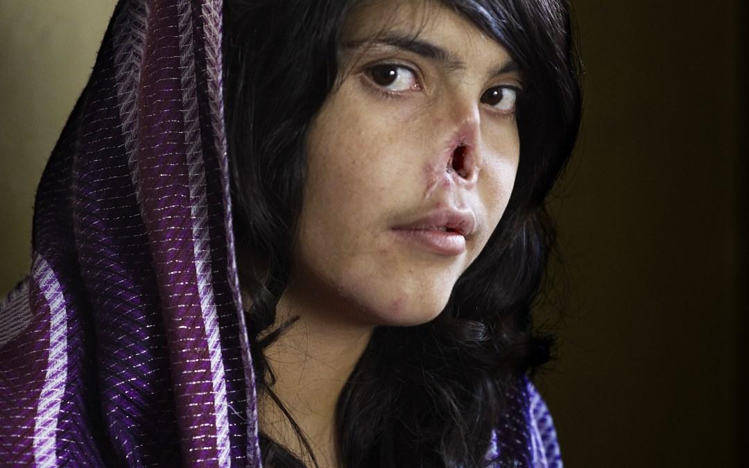 Premio World Press Photo 2010, las mejores fotografías periodísticas