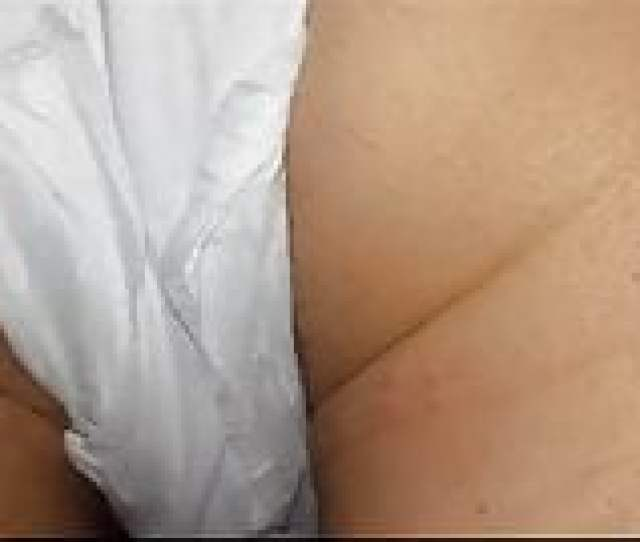 Hairy Milfs Ass In Menstruation Pad Non Nude
