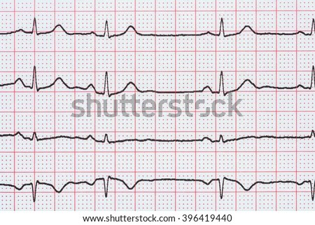 Sinus Rhythm Stock Images Royalty Free Images Amp Vectors