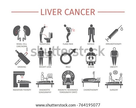 Metastasis Stock Images, Royalty-Free Images & Vectors