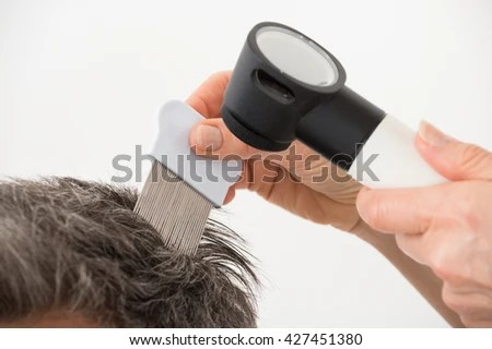 hair lice stock images royalty free images vectors shutterstock