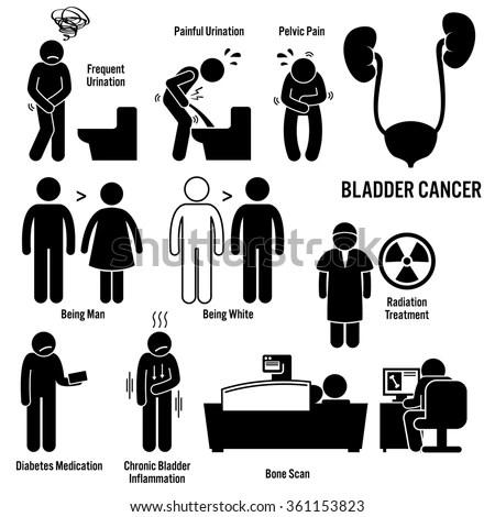 Bladder Cancer Stock Images, Royalty-Free Images & Vectors