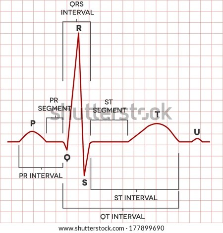 Electrocardiogram Stock Photos Images Amp Pictures