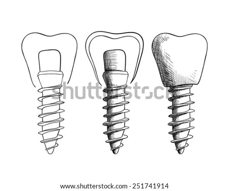 Vector Illustration Set Sketches Dental Implants Stock