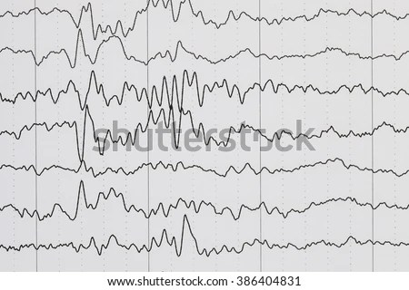 Ecg Diagram Ecg Electrocardiogram Paper Stock Photo