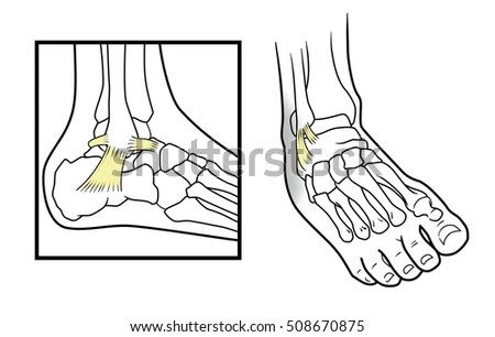 Ankle Pain Stock Images, Royalty-Free Images & Vectors