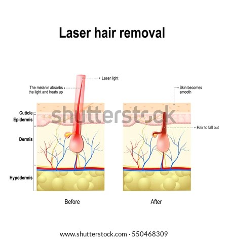 three stages acne formation human skin stock vector shutterstock