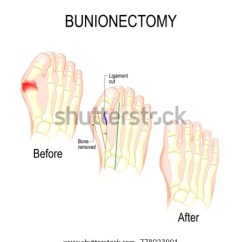 Bones In Your Foot Diagram Labeled Frog Anatomy Broken Big Toe Toyskids Co Stock Images Royalty Free Vectors