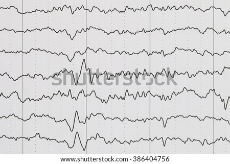 Ecg Diagram Ecg Electrocardiogram Paper Stock Photo