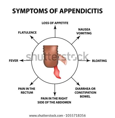 Appendix Stock Images, Royalty-Free Images & Vectors