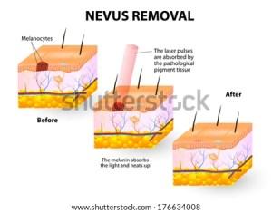Nevus Removal Stock Illustration 176634008  Shutterstock