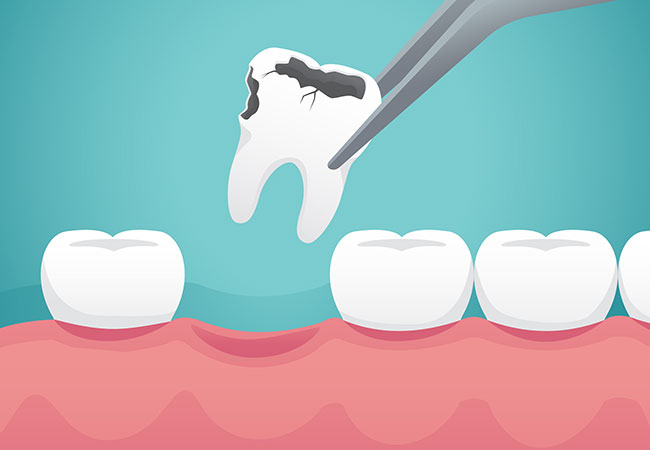 Simple Extractions – Thumbay Dental Hospital