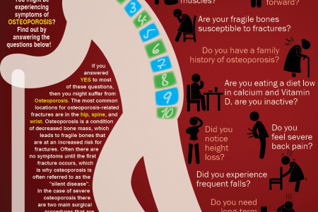 Osteoporosis Infographics Visual Ly