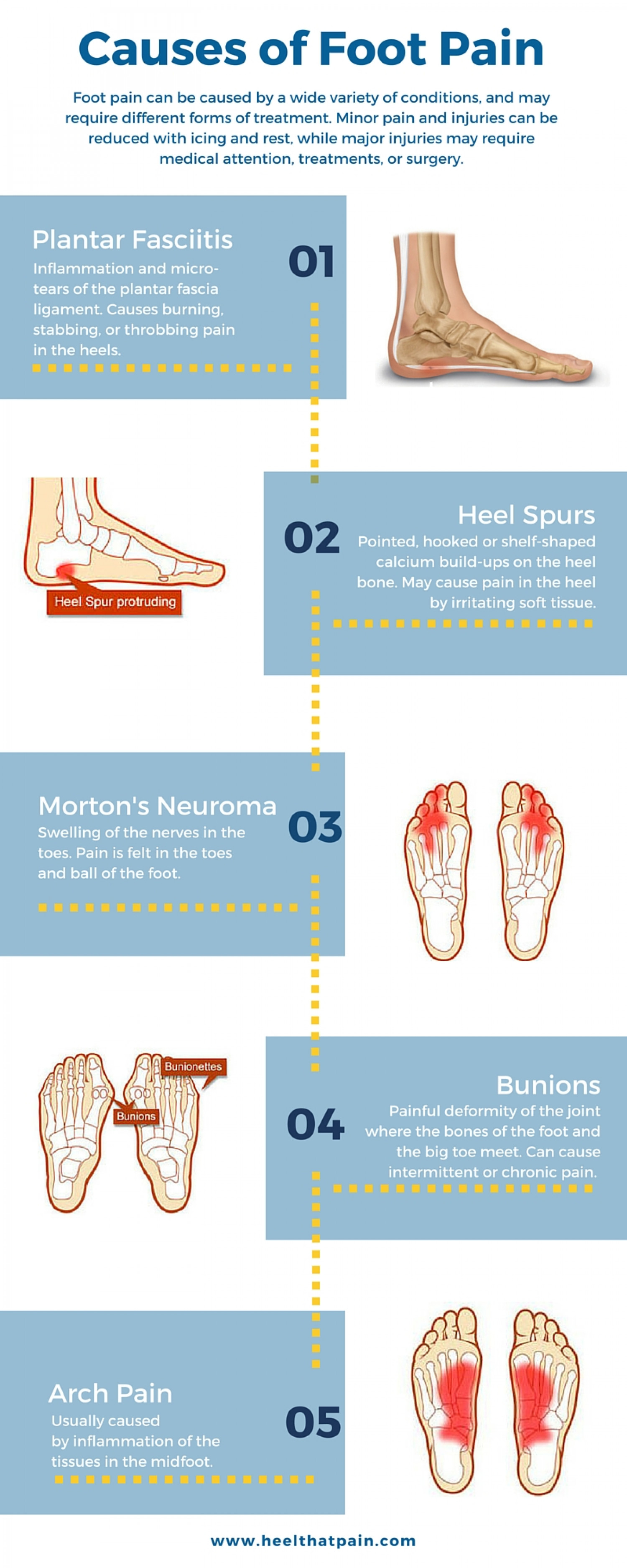 top of foot pain diagram tornado example types and heel visual ly